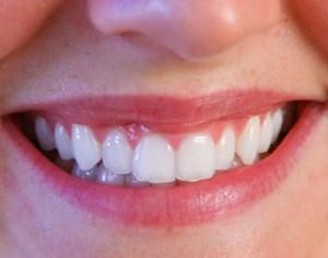 frenectologia labial boca