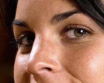 El hinchazón bajo el ojo pica