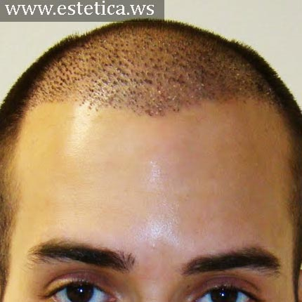 El tratamiento seborei la caída de los cabello