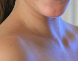 piel cuello flacidez