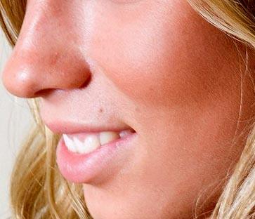 Solkoseril para la persona de las arrugas las revocaciones el gel o el ungüento que es mejor