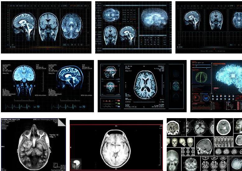 preguntas frecuentes sobre la paralisis cerebral que es