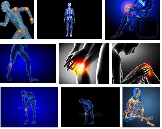 tratamiento dolor de rodillas