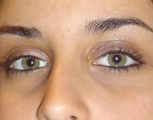 cromoterapia luz piel