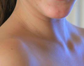 dolor cuello mujer