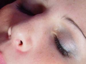 tratamiento ozono belleza