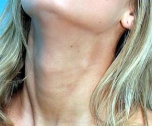 arrugas cuello crema