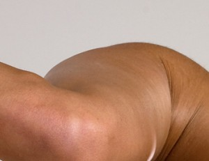 muslos fotos celulitis
