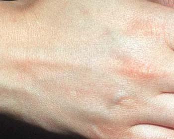 El tratamiento de la psoriasis por las nueces de cedro