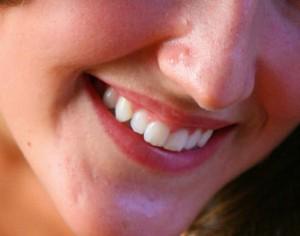 sonrisa perfecta dientes