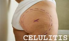 celulitis piel naranja