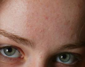 mejor tratamiento acne