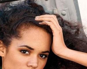 alopecia mujer cabello