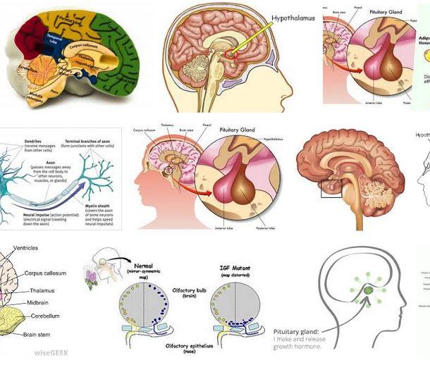 hormona crecimiento paralisis cerebral