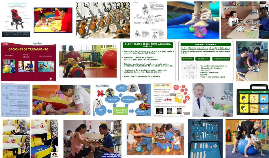 terapia craneosacral paralisis cerebral infantil