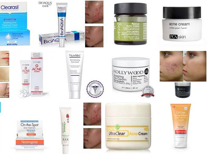 cremas acne rosacea opiniones funciona piel grasa