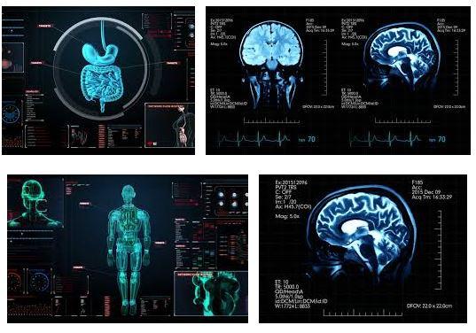 neuroplasticidad cerebral que es