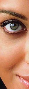 eccema ezcema ojo