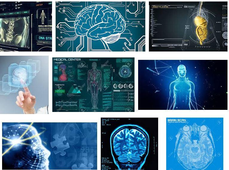 imagenes hipoxia cerebro que es notizalia