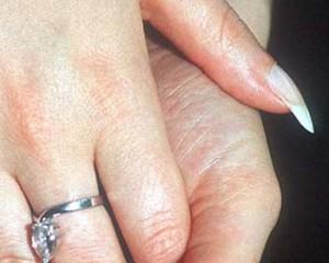 cuidado piel manos