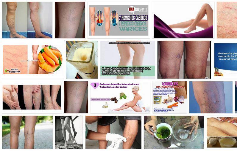 metodos naturales eliminar varices piernas