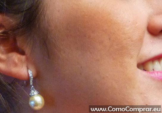 lanolina para acne