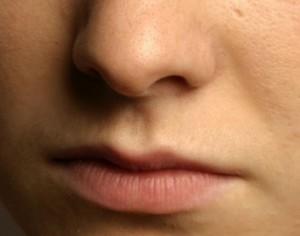 lineas expresion arrugas