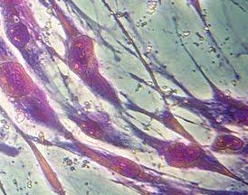 celulas madre parkinson