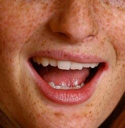 implante labios precio