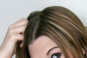 problemas pelo cabellos
