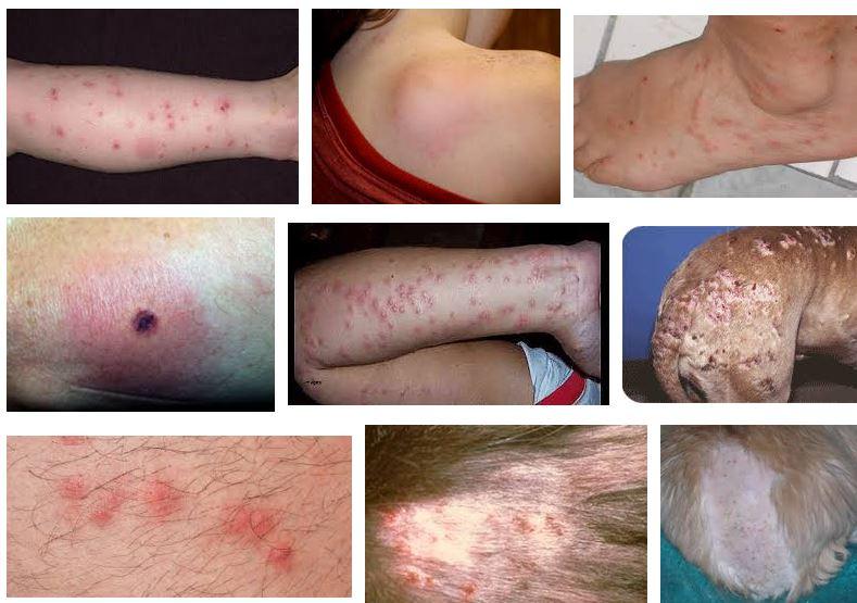 fotos de casos de alergia a las poicaduras de pulgas