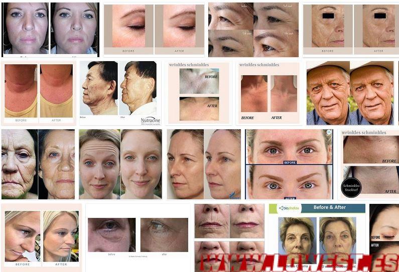 mejor crema arrugas funciona