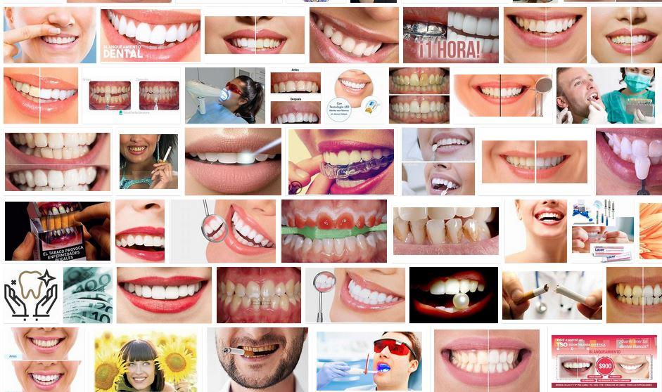 Dientes blancos tabaco blanqueamiento dental