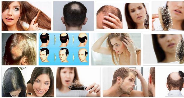 Caida del pelo y pérdida de cabello