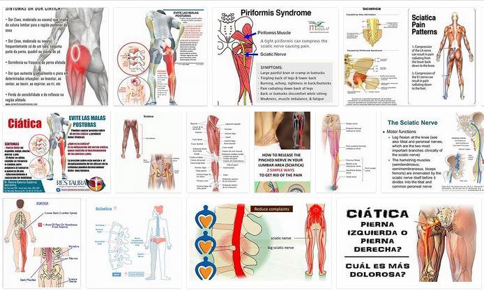 ciatica sintomas