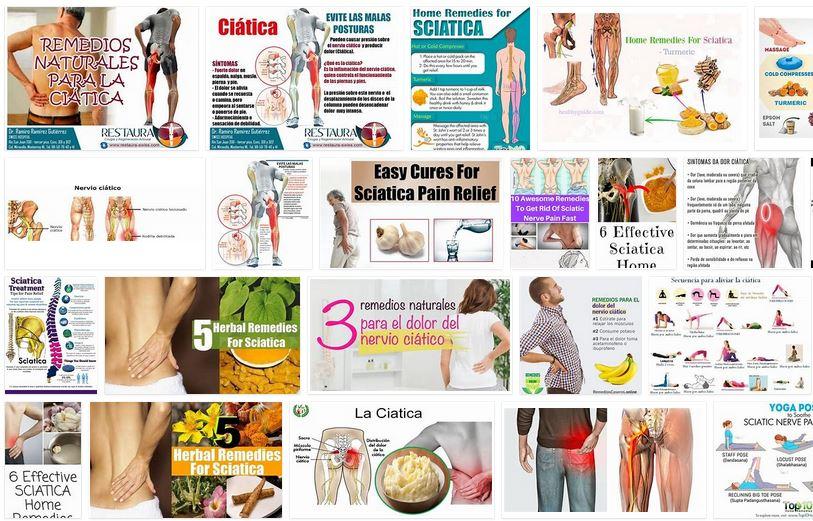 remedios para la ciatica