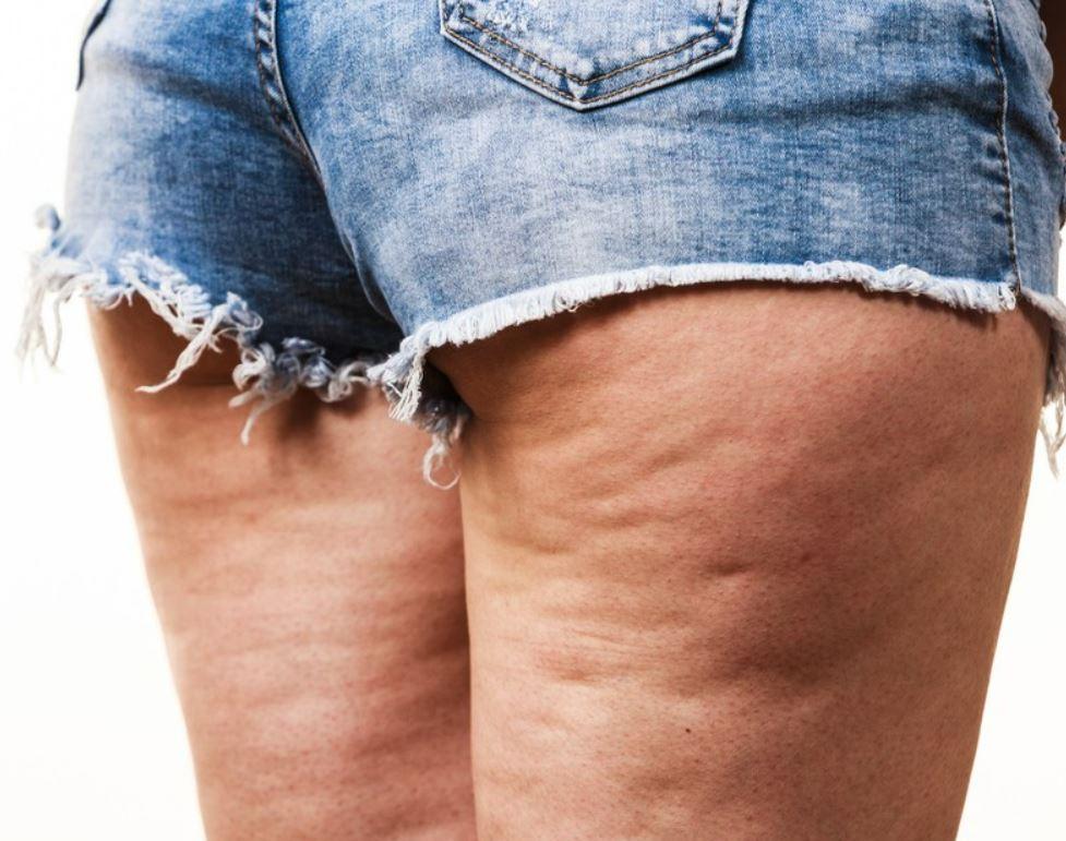 El mejor tratamiento para la celulitis y eliminarla