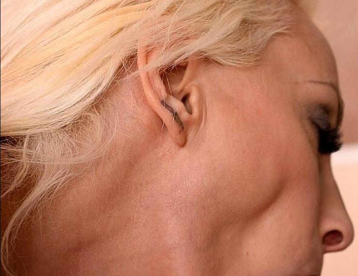 tratamientos con hormona de crecimiento para la piel